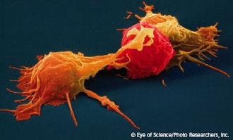 κύτταρα Φονείς (NK cells)